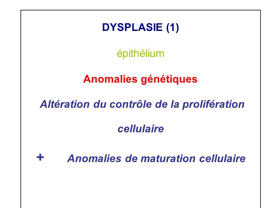 DYSPLASIE (1) épithélium Anomalies génétiques Altération du contrôle de la prolifération cellulaire + Anomalies de maturation cellulaire