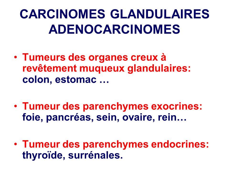 CARCINOMES GLANDULAIRES ADENOCARCINOMES Tumeurs des organes creux à revêtement muqueux glandulaires: colon, estomac … Tumeur des parenchymes exocrines