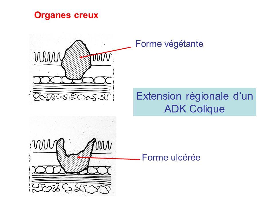 Extension régionale dun ADK Colique Forme végétante Forme ulcérée Organes creux
