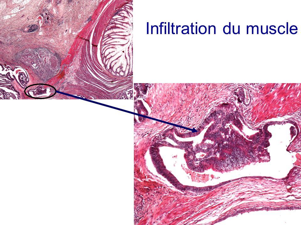 Infiltration du muscle