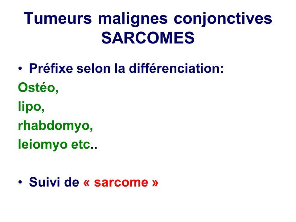 Tumeurs malignes conjonctives SARCOMES Préfixe selon la différenciation: Ostéo, lipo, rhabdomyo, leiomyo etc.. Suivi de « sarcome »