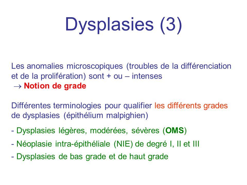 Dysplasies (3) Les anomalies microscopiques (troubles de la différenciation et de la prolifération) sont + ou – intenses Notion de grade Différentes t