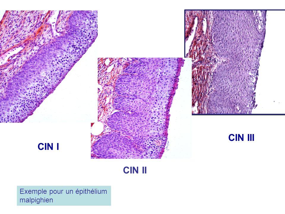 CIN I CIN II CIN III Exemple pour un épithélium malpighien