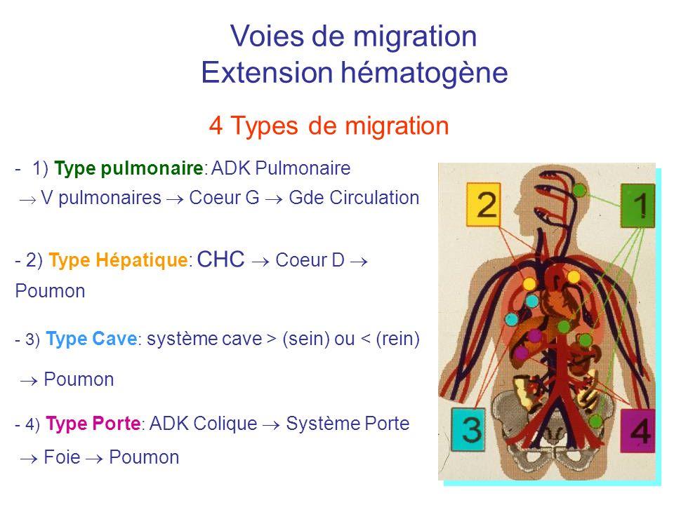 Voies de migration Extension hématogène - 1) Type pulmonaire: ADK Pulmonaire V pulmonaires Coeur G Gde Circulation - 2) Type Hépatique: CHC Coeur D Po