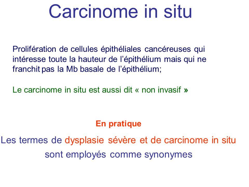 Carcinome in situ Prolifération de cellules épithéliales cancéreuses qui intéresse toute la hauteur de lépithélium mais qui ne franchit pas la Mb basa