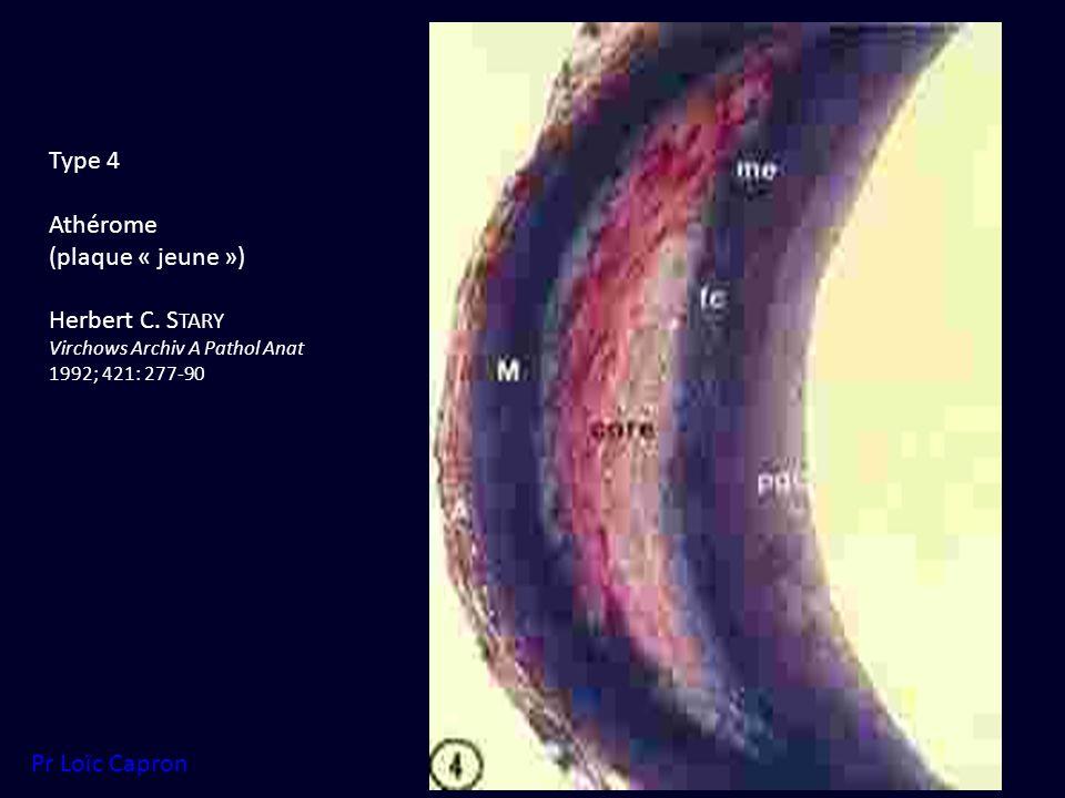 Type 4 Athérome (plaque « jeune ») Herbert C. S TARY Virchows Archiv A Pathol Anat 1992; 421: 277-90 Pr Loïc Capron