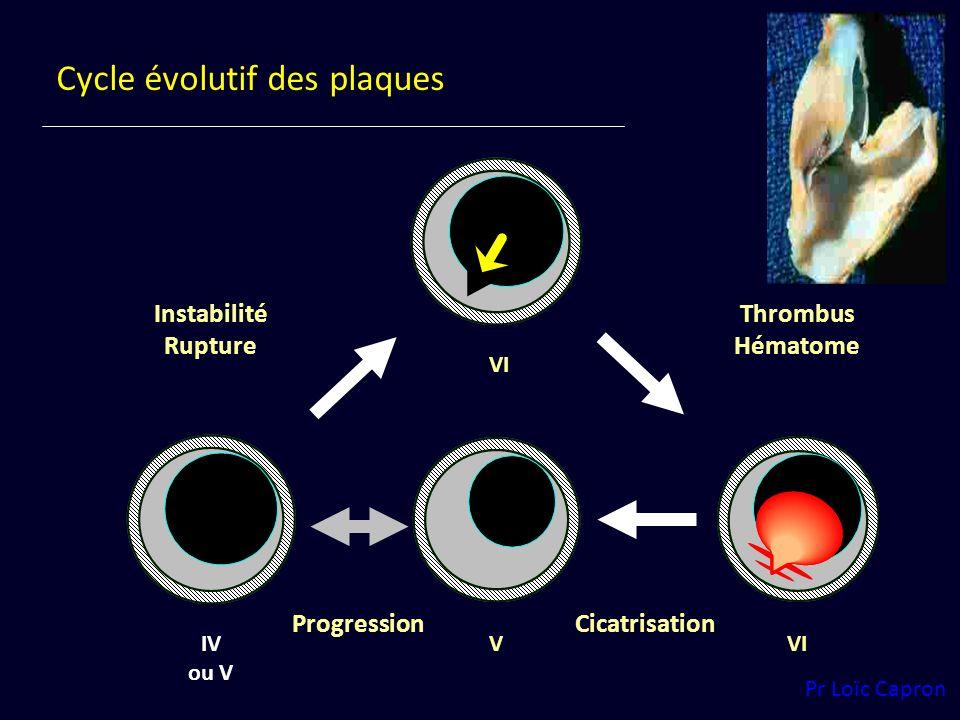 Cycle évolutif des plaques IV ou V VI Instabilité Rupture VI Thrombus Hématome Progression V Cicatrisation Pr Loïc Capron