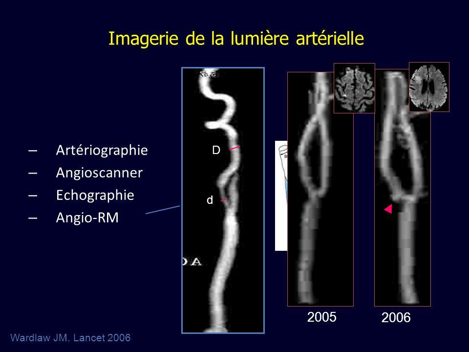 – Artériographie – Angioscanner – Echographie – Angio-RM Imagerie de la lumière artérielle d D Wardlaw JM. Lancet 2006 2005 2006