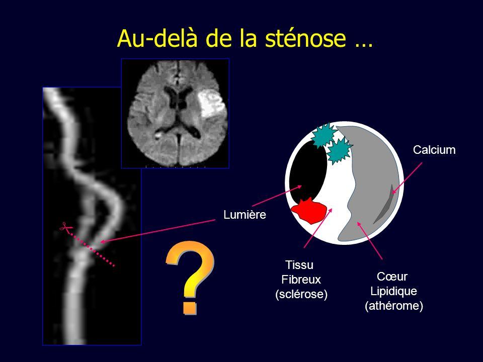 Lumière Tissu Fibreux (sclérose) Calcium Cœur Lipidique (athérome) Au-delà de la sténose …