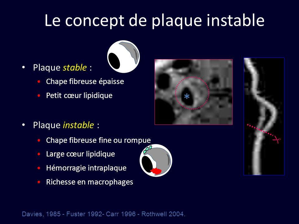 Le concept de plaque instable Plaque stable : Chape fibreuse épaisse Petit cœur lipidique Plaque instable : Chape fibreuse fine ou rompue Large cœur l