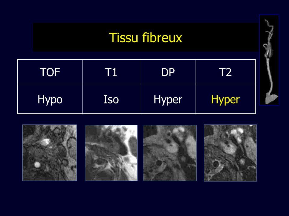 TOFT1DPT2 HypoIsoHyper Tissu fibreux