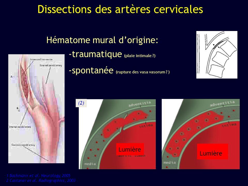 Dissections des artères cervicales Hématome mural dorigine: -traumatique (plaie intimale ?) -spontanée (rupture des vasa vasorum ? ) Lumière 1 Bachman