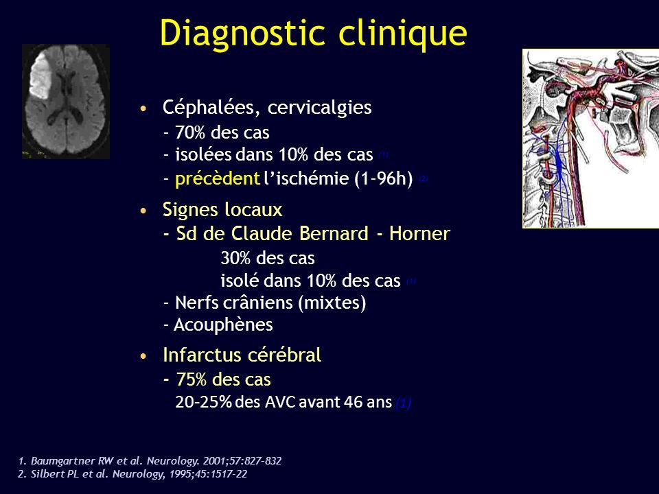 Diagnostic clinique Céphalées, cervicalgies - 70% des cas - isolées dans 10% des cas (1) - précèdent lischémie (1-96h) (2) Signes locaux - Sd de Claud