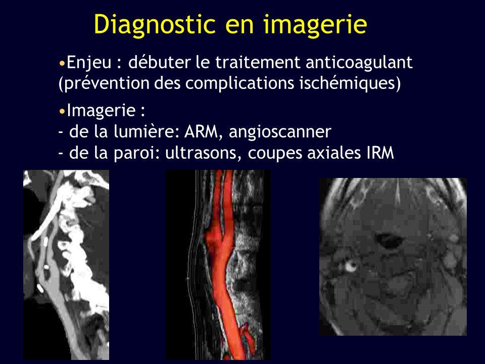 Enjeu : débuter le traitement anticoagulant (prévention des complications ischémiques) Imagerie : - de la lumière: ARM, angioscanner - de la paroi: ul