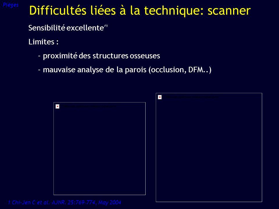 Sensibilité excellente (1) Limites : - proximité des structures osseuses - mauvaise analyse de la parois (occlusion, DFM..) 1 Chi-Jen C et al. AJNR. 2
