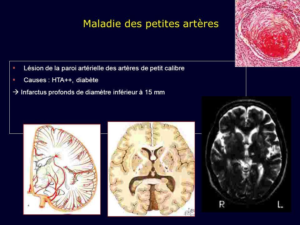 Maladie des petites artères Lésion de la paroi artérielle des artères de petit calibre Causes : HTA++, diabète Infarctus profonds de diamètre inférieu