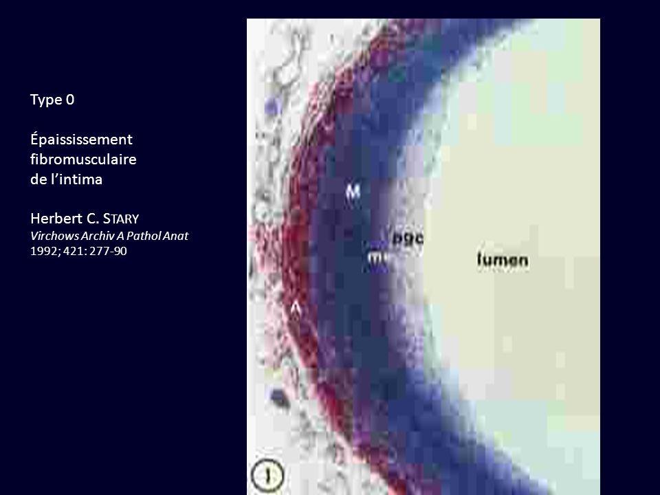 Type 0 Épaississement fibromusculaire de lintima Herbert C. S TARY Virchows Archiv A Pathol Anat 1992; 421: 277-90