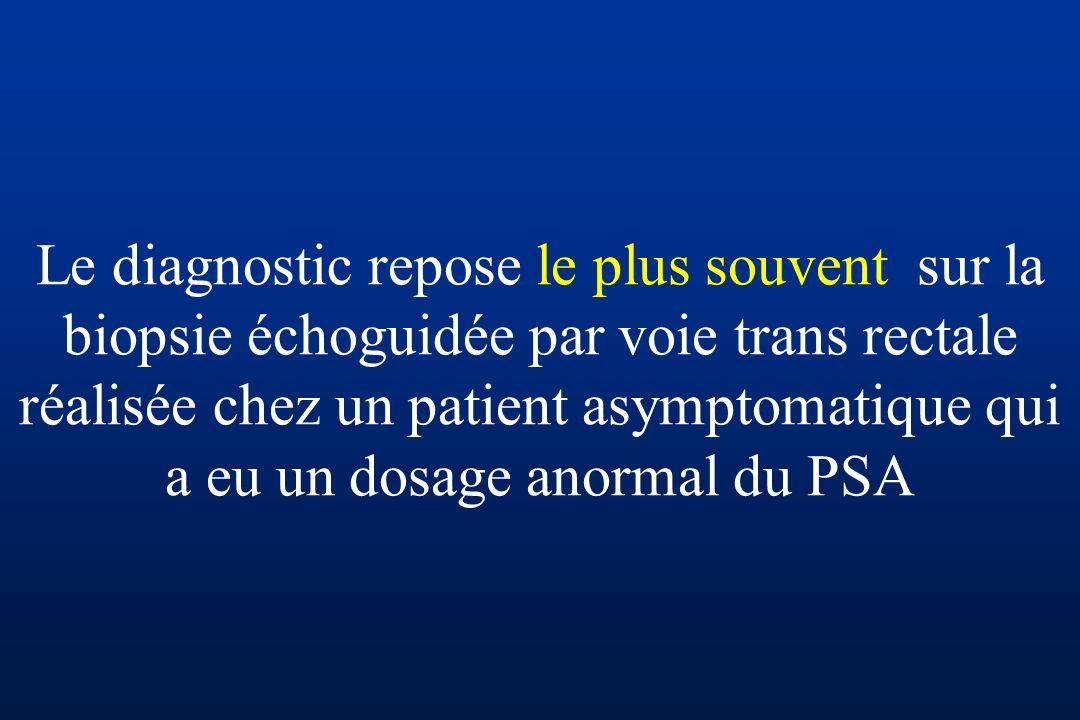 Le diagnostic repose le plus souvent sur la biopsie échoguidée par voie trans rectale réalisée chez un patient asymptomatique qui a eu un dosage anormal du PSA