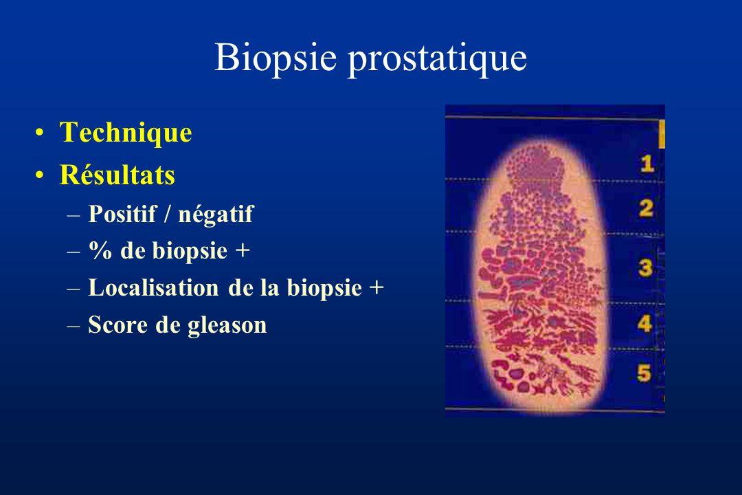 Biopsie prostatique Technique Résultats –Positif / négatif –% de biopsie + –Localisation de la biopsie + –Score de gleason