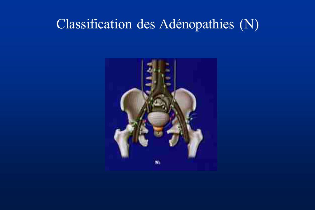 Classification des Adénopathies (N)