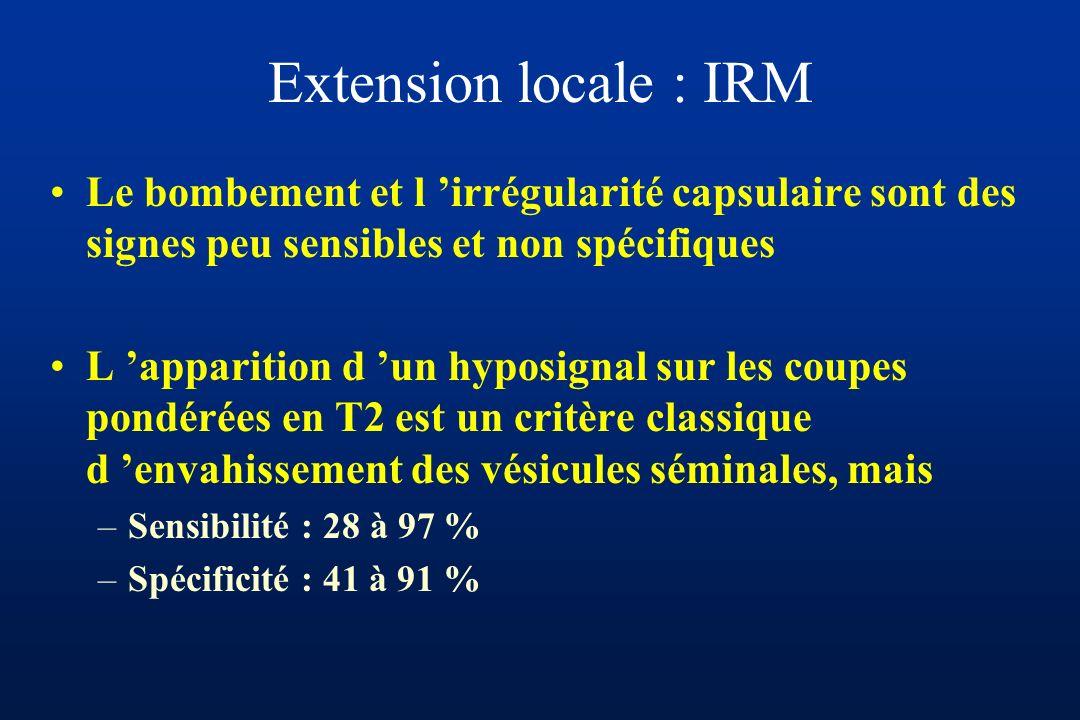 Extension locale : IRM Le bombement et l irrégularité capsulaire sont des signes peu sensibles et non spécifiques L apparition d un hyposignal sur les coupes pondérées en T2 est un critère classique d envahissement des vésicules séminales, mais –Sensibilité : 28 à 97 % –Spécificité : 41 à 91 %