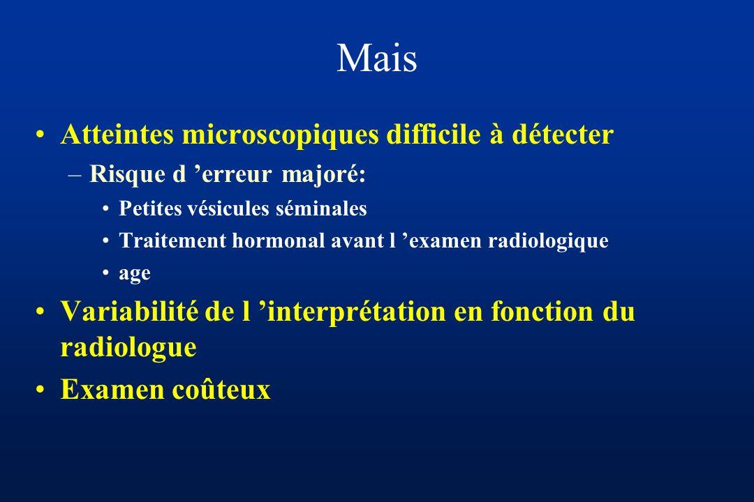 Mais Atteintes microscopiques difficile à détecter –Risque d erreur majoré: Petites vésicules séminales Traitement hormonal avant l examen radiologique age Variabilité de l interprétation en fonction du radiologue Examen coûteux