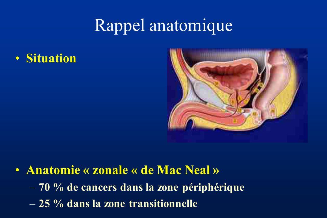 Rappel anatomique Situation Anatomie « zonale « de Mac Neal » –70 % de cancers dans la zone périphérique –25 % dans la zone transitionnelle