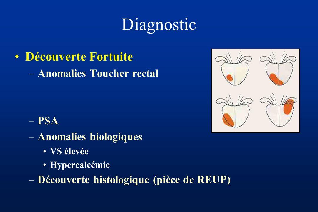Evaluation du risque : Marges Vésicules séminales Métastase ganglionnaire En fonction : Taux de PSA Score gleason Stade clinique