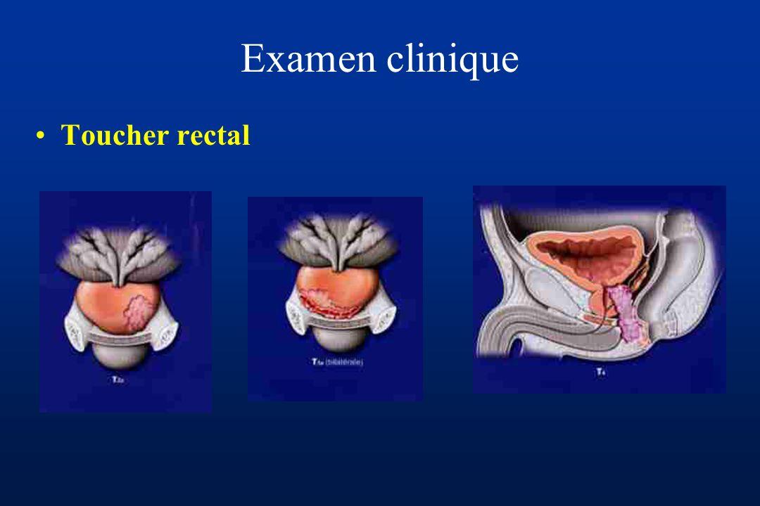 Diagnostic (2) Formes symptomatiques –Sémiologie urinaire Prostatisme Hématurie Hémospermie Insuffisance rénale Douleurs –Lombaires –Osseuses Autres (Compression médullaire, Baisse de l EG)