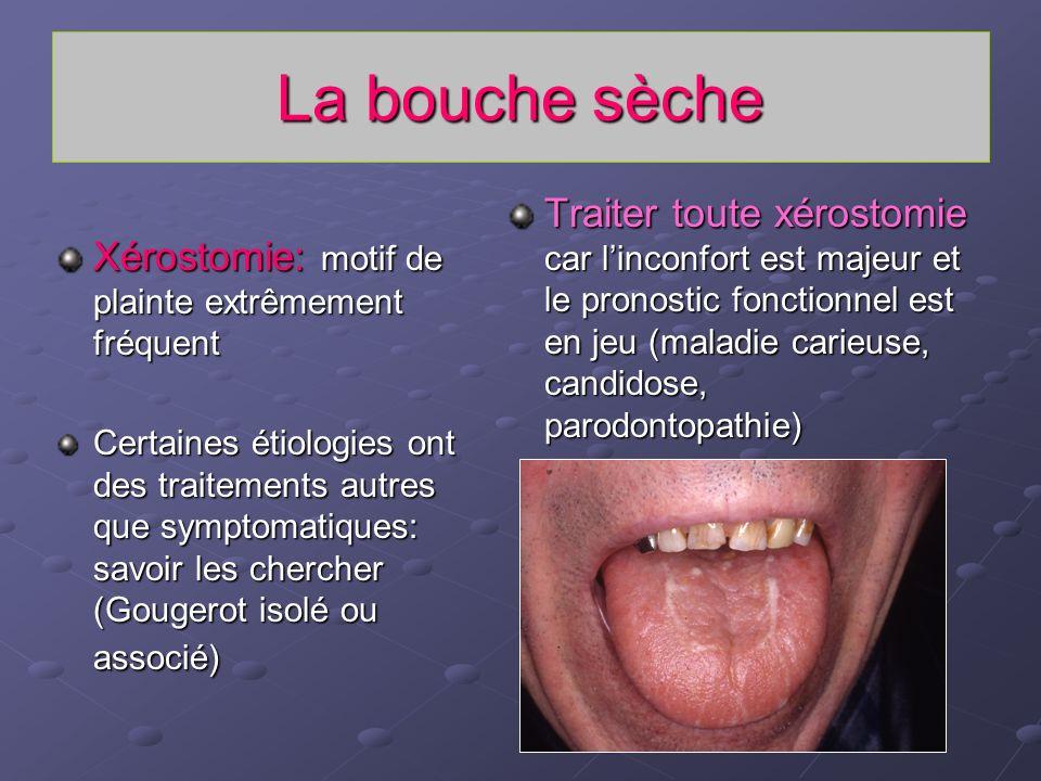 La bouche sèche Xérostomie: motif de plainte extrêmement fréquent Certaines étiologies ont des traitements autres que symptomatiques: savoir les cherc