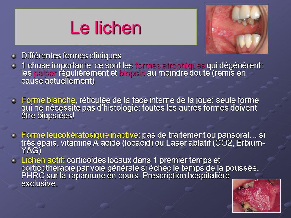 Le lichen Différentes formes cliniques 1 chose importante: ce sont les formes atrophiques qui dégénèrent: les palper régulièrement et biopsie au moind