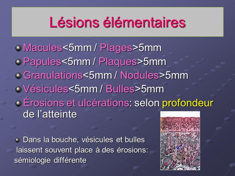 Lésions élémentaires Macules 5mm Papules 5mm Granulations 5mm Vésicules 5mm Érosions et ulcérations: selon profondeur de latteinte Dans la bouche, vés