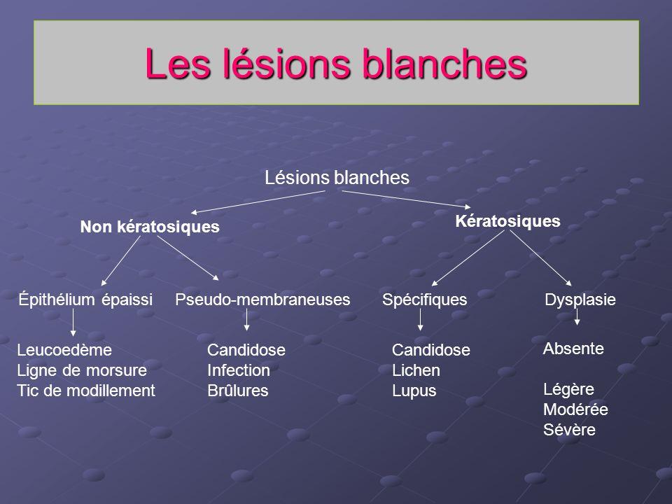 Les lésions blanches Lésions blanches Non kératosiques Kératosiques Épithélium épaissiPseudo-membraneusesSpécifiquesDysplasie Leucoedème Ligne de mors