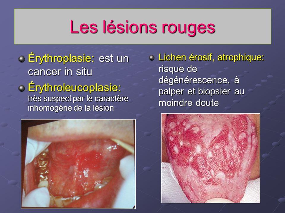 Les lésions rouges Érythroplasie: est un cancer in situ Érythroleucoplasie: très suspect par le caractère inhomogène de la lésion Lichen érosif, atrop