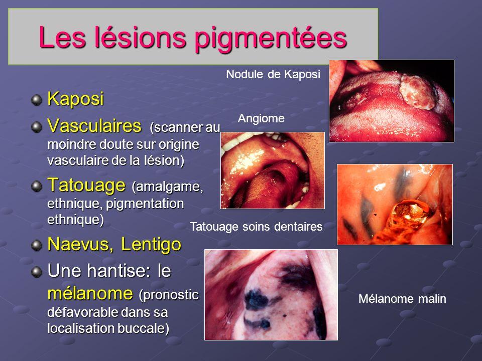 Les lésions pigmentées Kaposi Vasculaires (scanner au moindre doute sur origine vasculaire de la lésion) Tatouage (amalgame, ethnique, pigmentation et