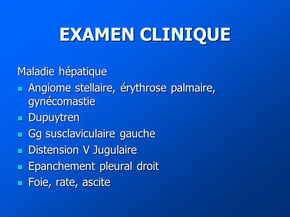 EXAMEN CLINIQUE Maladie hépatique Angiome stellaire, érythrose palmaire, gynécomastie Angiome stellaire, érythrose palmaire, gynécomastie Dupuytren Du