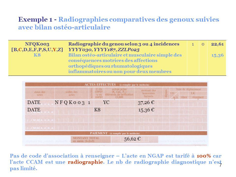 7 Exemple 1 - Radiographies comparatives des genoux suivies avec bilan ostéo-articulaire DATE K8 15,36 56,62 DATE N F Q K 0 0 3 1 YC 37,26 Pas de code