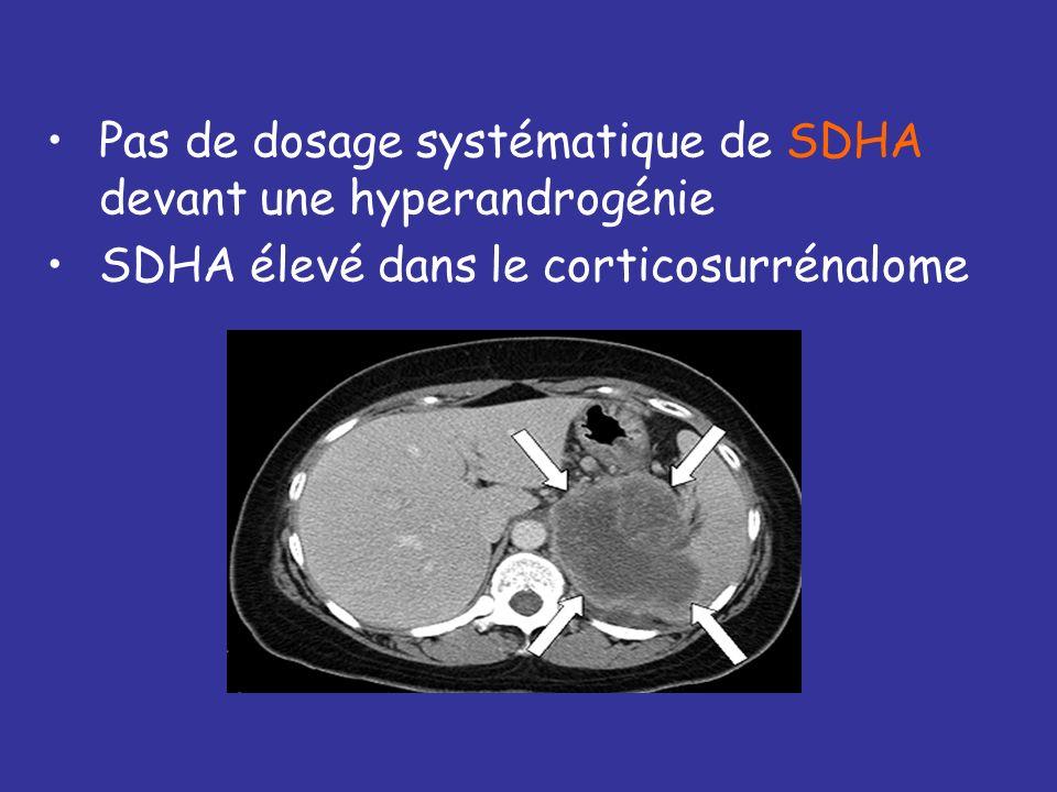 +++ si testostérone > 2DS au-dessus de la normale, classiquement 1,2 ng/ml 1.Hyperthécose 2.Tumeur ovarienne 3.Tumeur surrénalienne (SDHA) 4.Syndrome