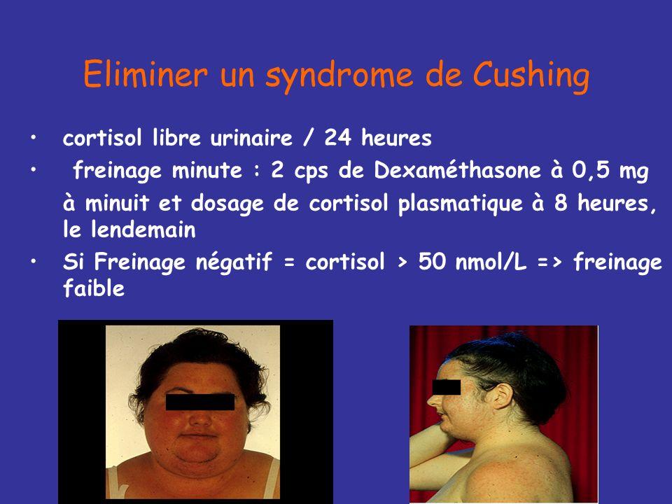 +++ si testostérone > 1,2 ng/ml 1.Hyperthécose 2.Tumeur ovarienne 3.Tumeur surrénalienne (SDHA) 4.Syndrome de Cushing (cortisol libre urinaire / 24 he