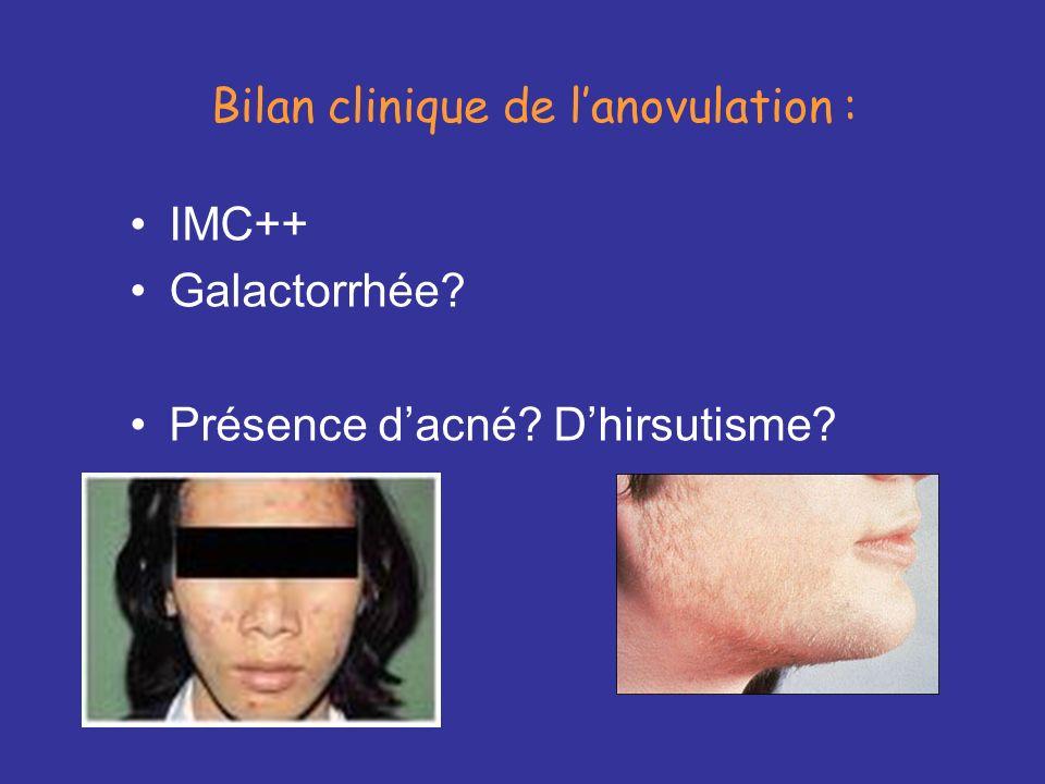 Bilan clinique de lanovulation : IMC++ Galactorrhée? Présence dacné? Dhirsutisme?