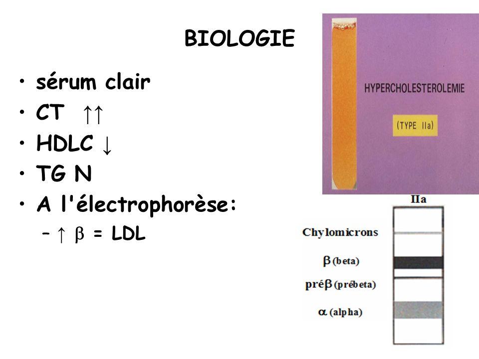 BIOLOGIE sérum clair CT HDLC TG N A l'électrophorèse: – = LDL