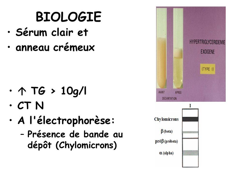 BIOLOGIE Sérum clair et anneau crémeux TG > 10g/l CT N A l'électrophorèse: –Présence de bande au dépôt (Chylomicrons)