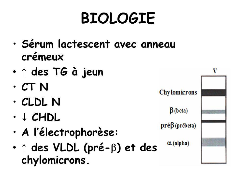 BIOLOGIE Sérum lactescent avec anneau crémeux des TG à jeun CT N CLDL N CHDL A lélectrophorèse: des VLDL (pré- ) et des chylomicrons.
