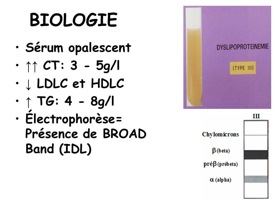 BIOLOGIE Sérum opalescent CT: 3 - 5g/l LDLC et HDLC TG: 4 - 8g/l Électrophorèse= Présence de BROAD Band (IDL)