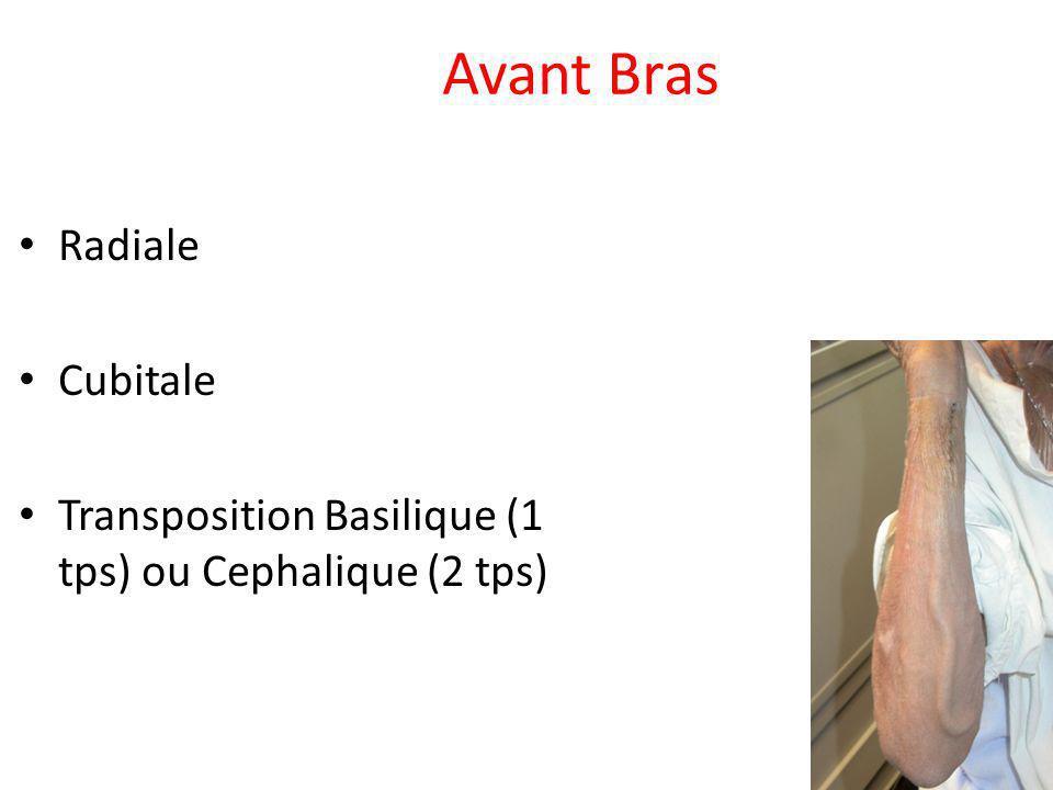 Avant Bras Radiale Cubitale Transposition Basilique (1 tps) ou Cephalique (2 tps)