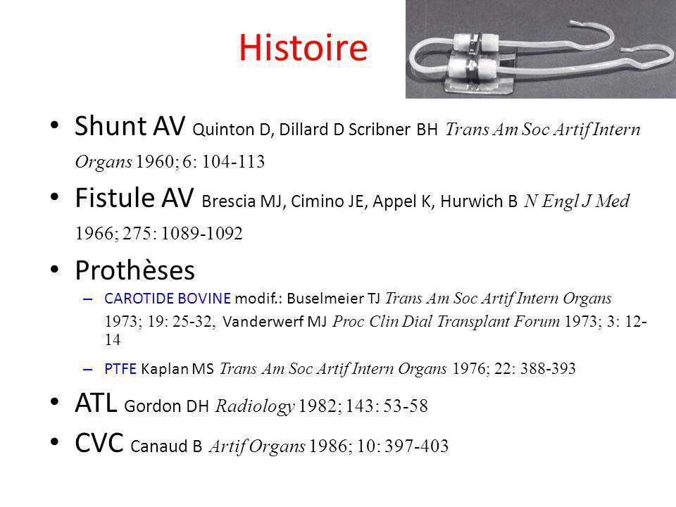 Histoire Shunt AV Quinton D, Dillard D Scribner BH Trans Am Soc Artif Intern Organs 1960; 6: 104-113 Fistule AV Brescia MJ, Cimino JE, Appel K, Hurwic