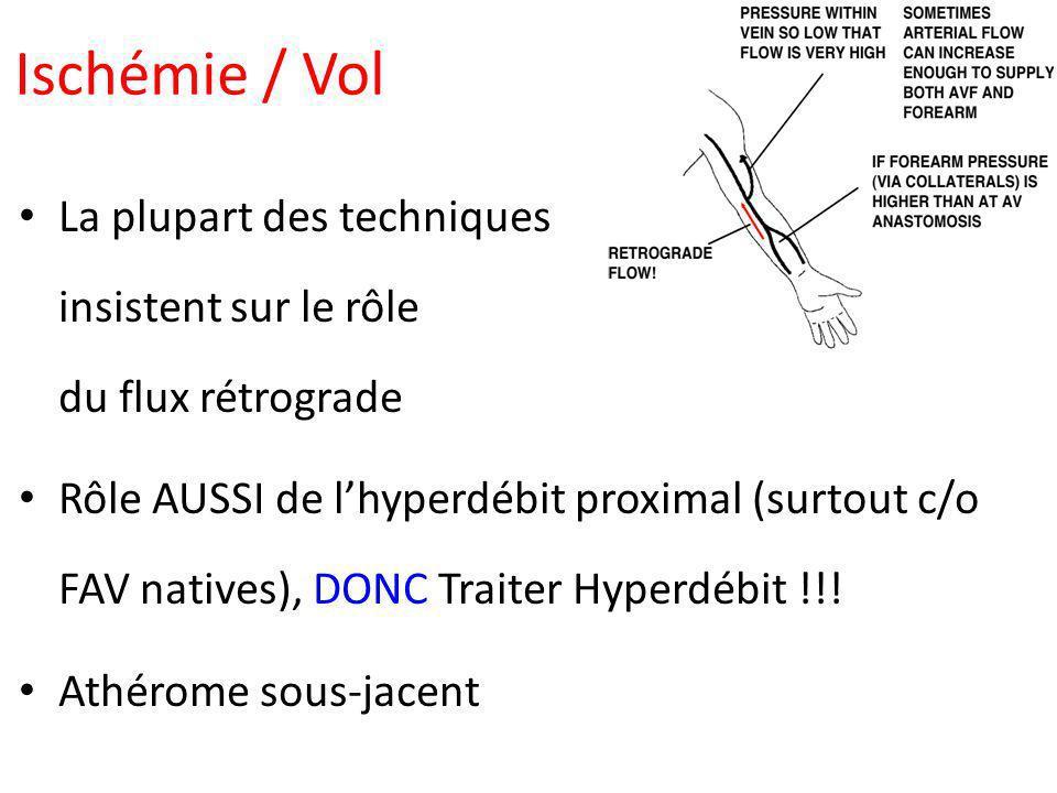 Ischémie / Vol La plupart des techniques insistent sur le rôle du flux rétrograde Rôle AUSSI de lhyperdébit proximal (surtout c/o FAV natives), DONC T