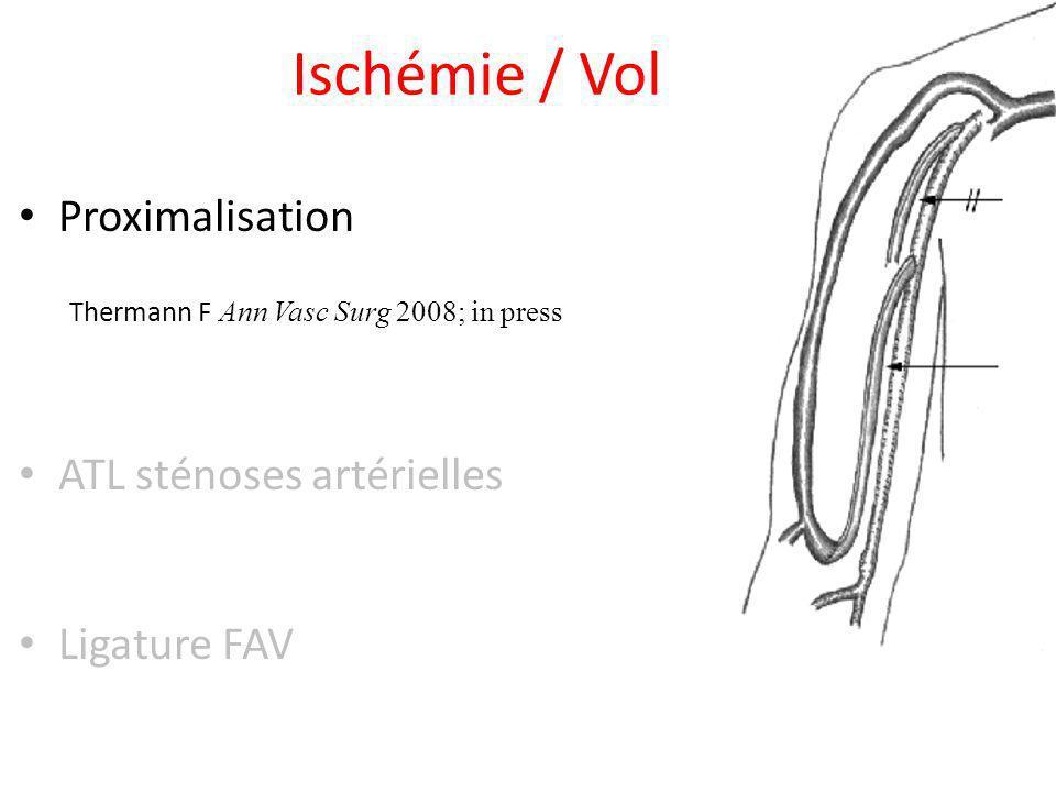 Ischémie / Vol Proximalisation Thermann F Ann Vasc Surg 2008; in press ATL sténoses artérielles Ligature FAV
