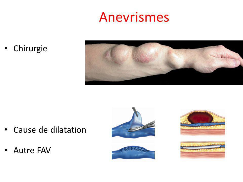 Anevrismes Chirurgie Cause de dilatation Autre FAV