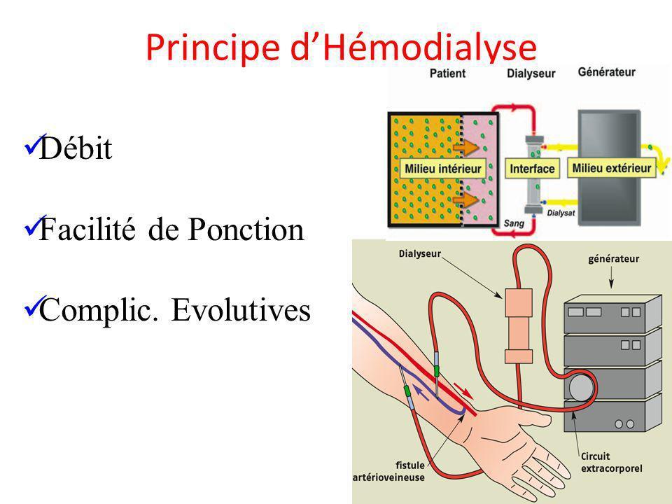 Principe dHémodialyse Débit Facilité de Ponction Complic. Evolutives